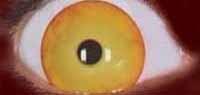 Lensquest