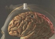 La micro-électrode est directement implantée sur le cerveau